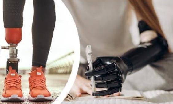 Las innovaciones tecnológicas protésicas mejoran la adaptación y la calidad de vida de los pacientes amputados